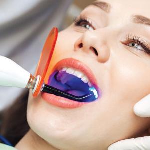 Laser Assisted Dental Fillings